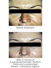 Lactobotanical Peel - Smooth Curves, Skin & Body Clinic