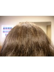 Hair Loss Treatment - Antech Hair and Skin Clinics - Mississauga
