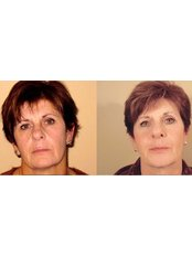 Non-Surgical Facelift - Antech Hair and Skin Clinics - Mississauga