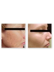 Pigmentation Treatment - Antech Hair and Skin Clinics - Mississauga