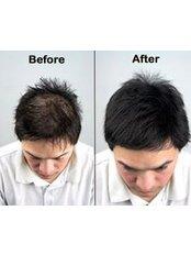 Hair Loss Specialist Consultation - Skintech Studioz