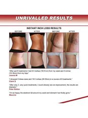 Laser Lipolysis - Dublin Skin and Laser Clinic