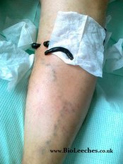 Varicose Veins. Piles. Sexual Dysfunction - Varicose Veins - Piles Bio Surgery Mobile Clinic