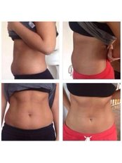 Zeltiq CoolSculpting™ - Lipo Freeze