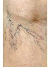 Sclerotherapy - Facial and Cosmetic Enhancement Clinic