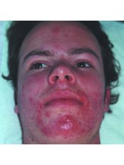 Acne Facial - BeauSynergy