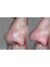 Spider Veins Treatment - BeauSynergy