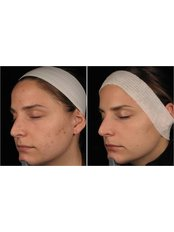 Acne Treatment - BeauSynergy