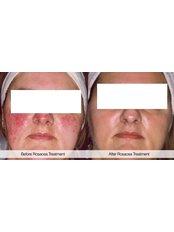 Rosacea Treatment - BeauSynergy
