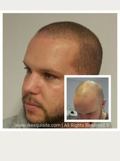 RK Exquisite - Hair loss tattoo - Scalp Micropigmentation