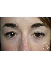Semi Permanent Makeup Eyeliner - The Dermatography Clinic