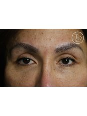 Semi-Permanent Makeup Eyebrows - The Dermatography Clinic