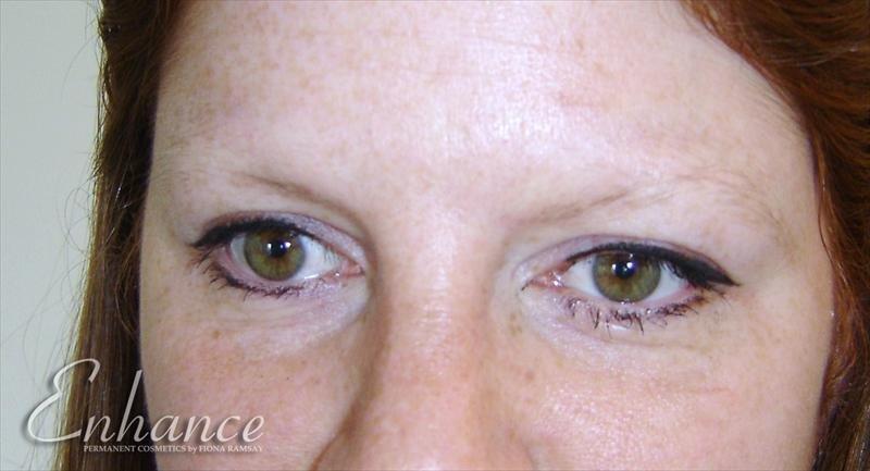 Enhance Permanent Cosmetics - The Edinburgh Clinic