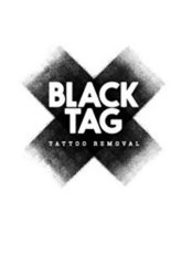 Black Tag Tattoo Removal - image 0