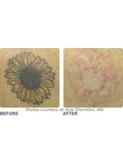 tattoo removal - Cannelle Beauty - Henley