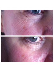Facial Rejuvenation - Abby Stacey - Advanced Skin Treatments