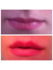 Lip Augmentation - Abby Stacey - Advanced Skin Treatments