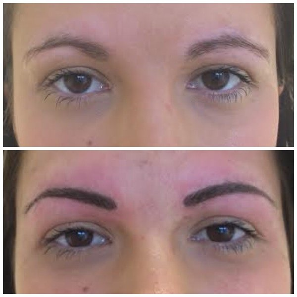 Abby Stacey - Advanced Skin Treatments