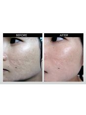 Microneedling/Dermaroller™ - Carefree Beauty Permanent Makeup