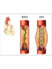 Coronary Angioplasty - Bharath Cardiovascular Institute
