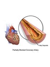 Coronary Artery Bypass Surgery - Bharath Cardiovascular Institute