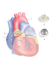 Aortic Valve Replacement - Bharath Cardiovascular Institute