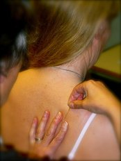 Dry Needling - The Cliffs Chiropractic Clinic Ltd
