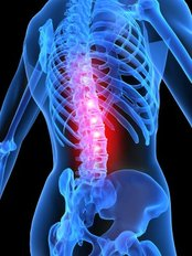 Richmond Chiropractic Clinic Limited - Slipped disc, Trapped Nerve, Muscle spasm