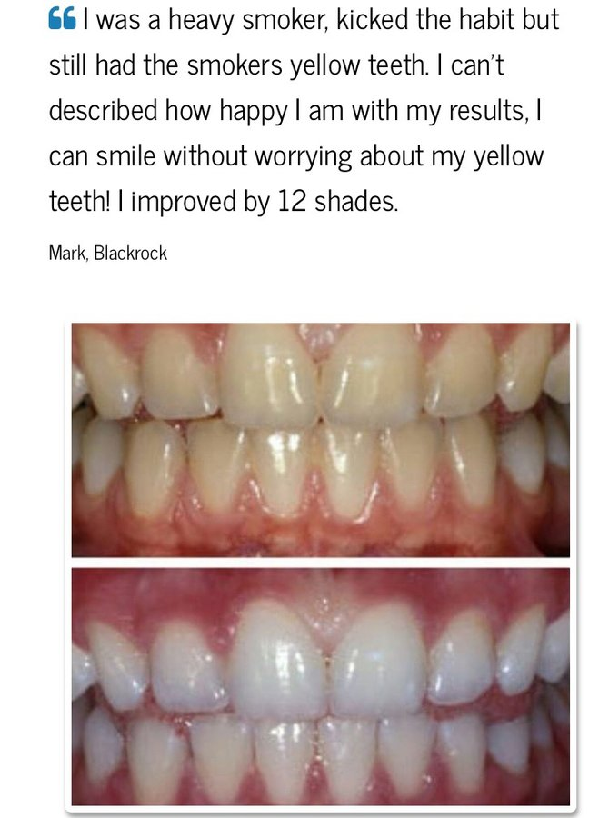 The Teeth Whitening Clinic Cork Cosmetic Dentist In Cork