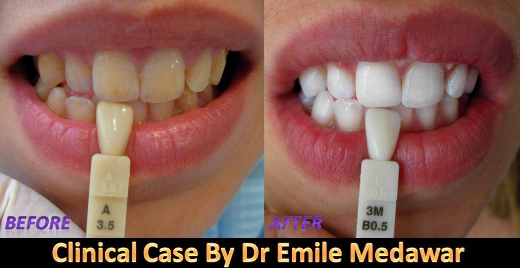 Hollywood Smile Lebanon Cosmetic Dentist In Beirut