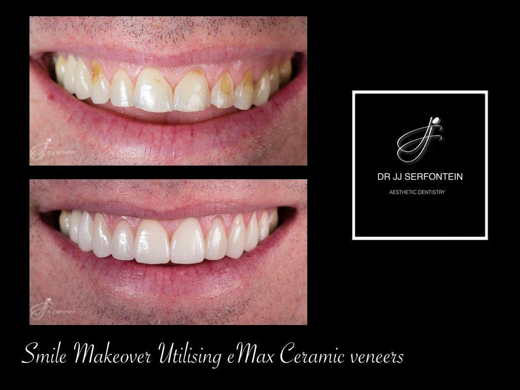 Cape Town Dentist Dr Jj Serfontein Cosmetic Dentist In
