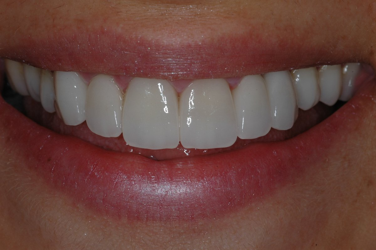 Dentorion Dental Clinic Cosmetic Dentist In Izmir