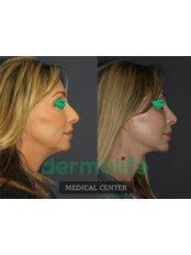 Facelift - Dermolife