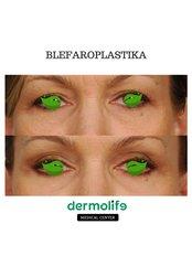 Eyelid Surgery (Blefaroplasty) - Dermolife