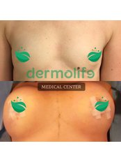 Breast Agumentation - Dermolife