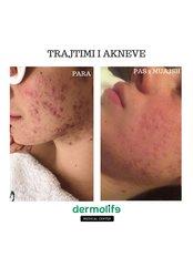 Acne Treatment - Dermolife