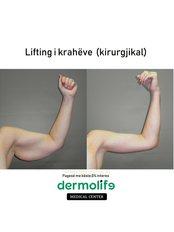 Arm Lift - Dermolife