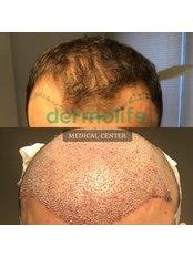 Hair Transplant - Dermolife