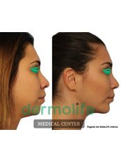 Buccal Fat Removal - Dermolife