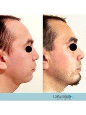 Rhinoplasty + Chin Augmentation - Dr Zuccardi Santiago