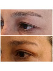 Eyelid surgery - Dr Zuccardi Santiago