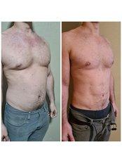Liposuction - Dr Zuccardi Santiago