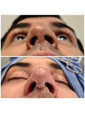 Rhinoplasty - Dr Zuccardi Santiago
