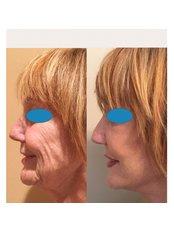 Facelift - Dr Zuccardi Santiago