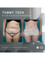Hunter Plastic Surgery - Tummy tuck by Dr Moncrieff at Hunter Plastic Surgery