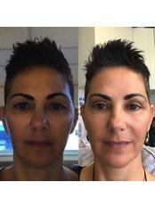 Blepharoplasty - Bella Face Cosmetic Medicine Newcastle