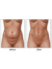 Full Abdominoplasty  - Bare Aesthetics Cosmetic Surgery Clinics