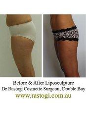 VASER Lipo™ - Art of Surgery Dr Rastogi