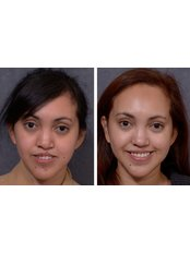Cleft Lip and Palate Treatment - Dr Darryl J Hodgkinson