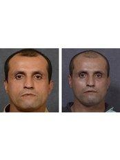 Cheek Implants - Dr Darryl J Hodgkinson